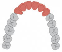 FronthodontX 3-3