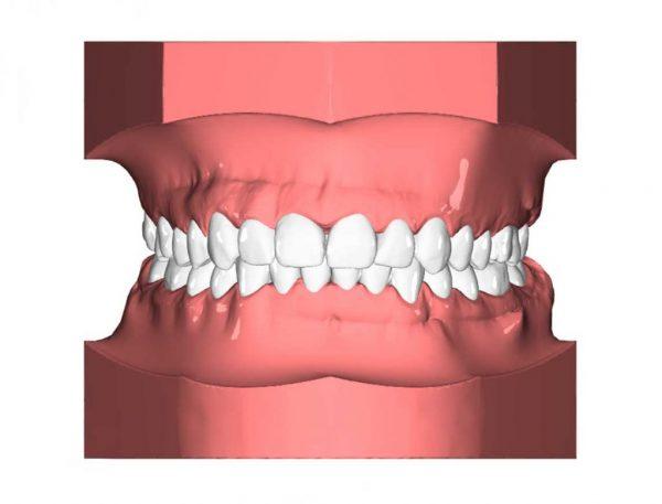 Orthodontx Ergebnisse